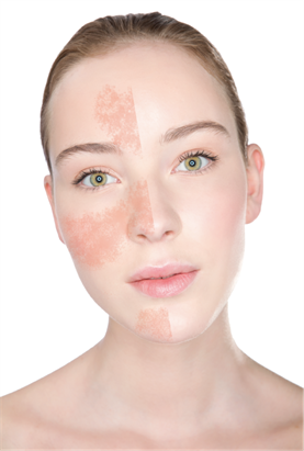 Rosacea Before After Webb